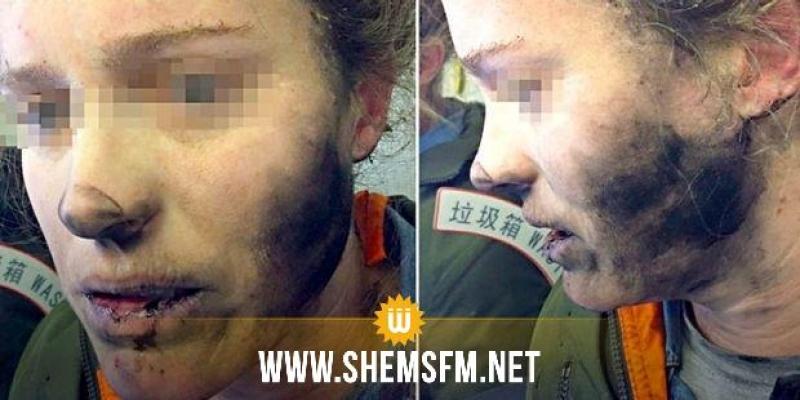Une Australienne brûlée par l'explosion en plein vol de ses écouteurs