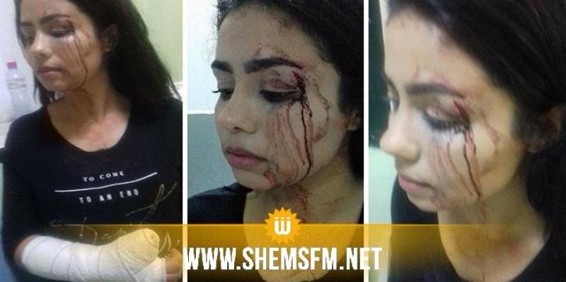 'أمني' يعتدي على فتاة  بعد مناوشة في الطريق خلال إزدحام مروري: المتضررة تتحدث لشمس آف آم