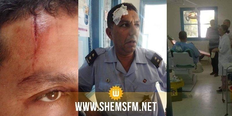 Tunis : un agent de la police municipale agressé à coups de pelle