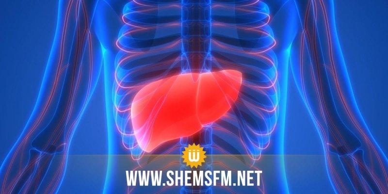 جندوبة: وفاة طفل مصاب بالتهاب الكبد الفيروسي