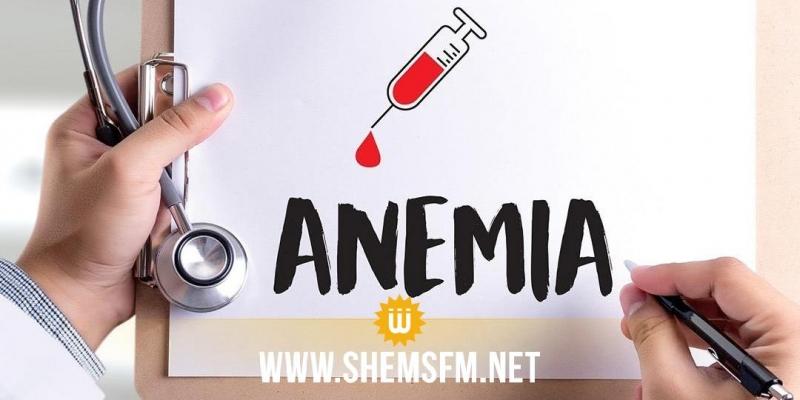 صحة: مشكلات صحية يسببها نقص الحديد في الدم