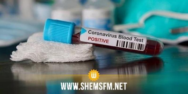 قبلي: 15 إصابة جديدة بكورونا و4 حالات شفاء بجمنة
